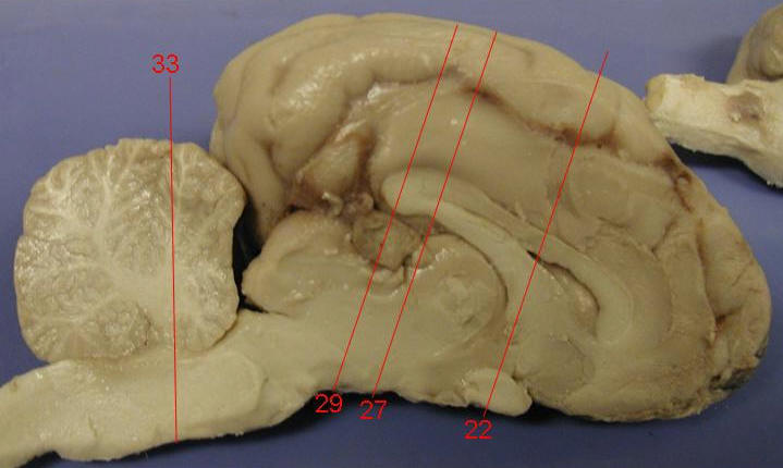 Caudate Nucleus And Fornix DISSECTION OF THE SHEE...