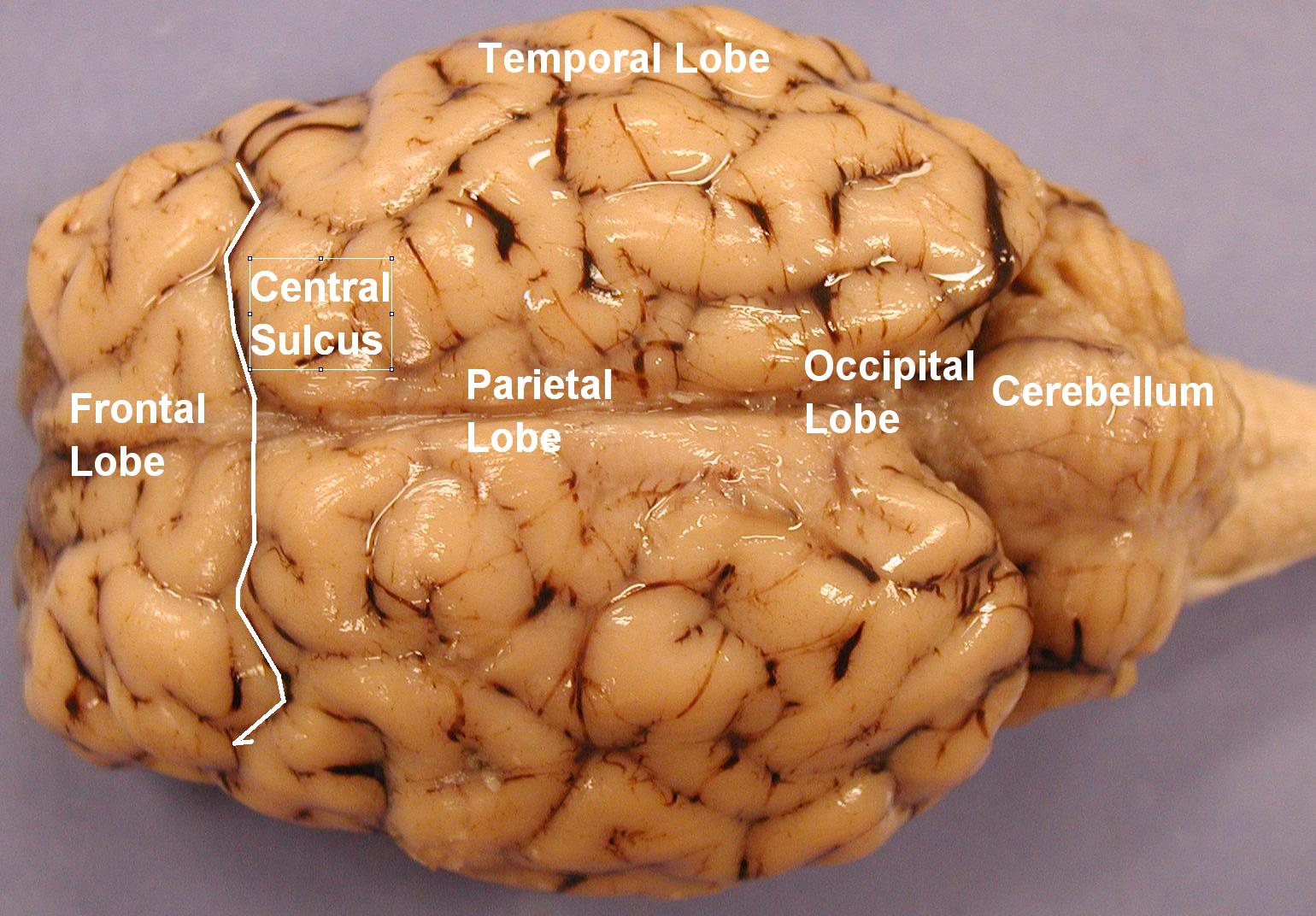 Sheep Brain Diagram Labeled - Sheep Brain Dissection | Anatomy ...